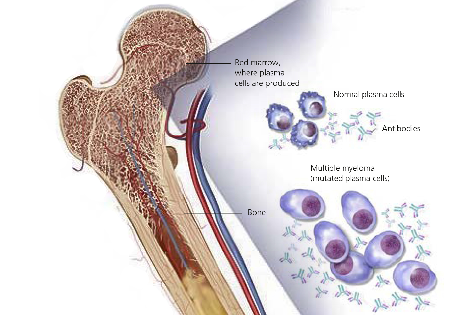 Multiple Myeloma - a cancer of the bone marrow